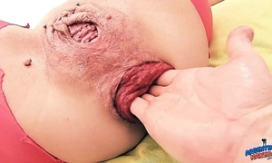 Goofy prolapse milf wet crack fisting anal fisting - experimental anal personality
